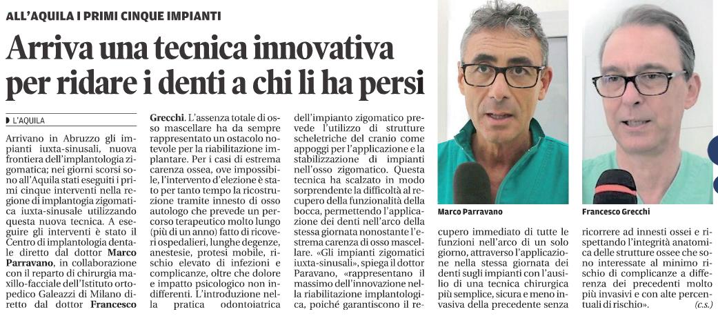 Implantologia Pescara: in Abruzzo arrivano gli impianti iuxta-sinusali